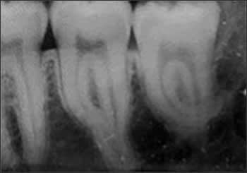Periapical radiograph of root dilaceration #17 and #18