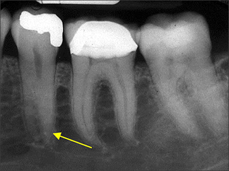 Periapical radiograph of supernumerary tooth root #20