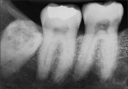 External resorption of impacted molar tooth #32