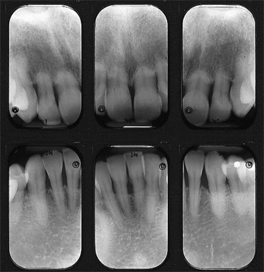 Anterior periapical radiographs of teeth with external resorption, especially severe on the maxilla