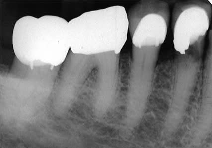 Periapical radiograph showing internal resorption of tooth #28 visible below the restoration