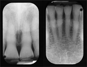 Periapical radiographs showing secondary dentin deposition likely due to attrition