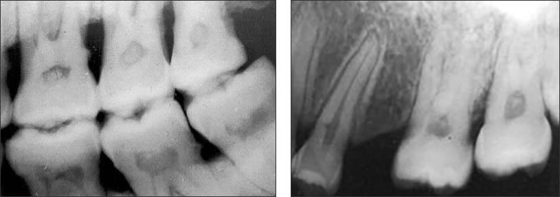 Bitewing and periapical radiographs showing posterior pulp stones of varying sizes