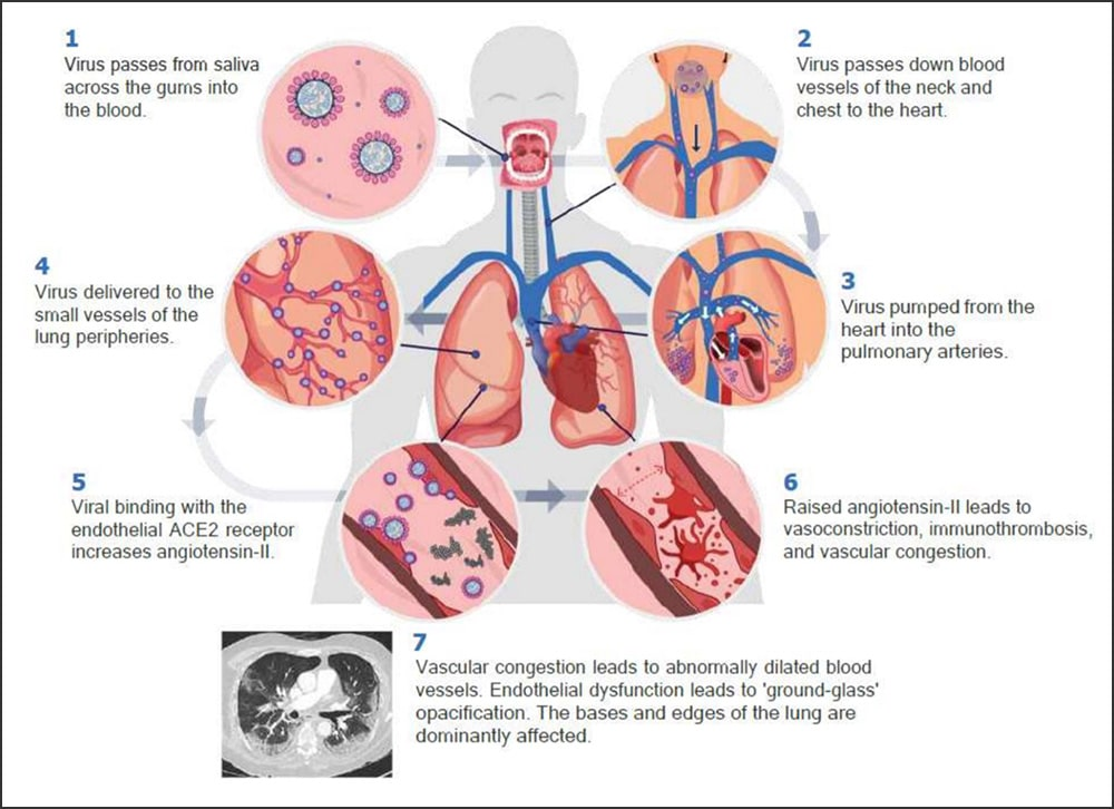 Illustrated diagram of the COVID-19 pathway for the oral-vascular-pulmonary route of infection (hypothetical model)