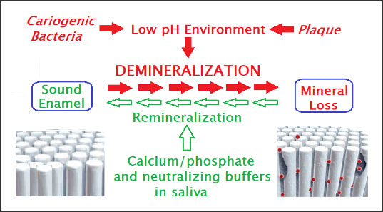 Process diagram for the Demineralization process