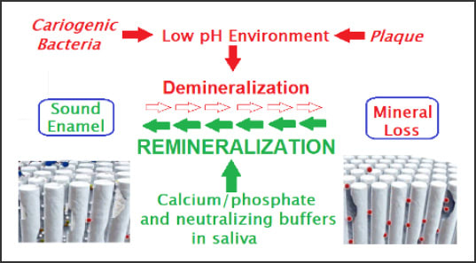 Process diagram for the Remineralization process