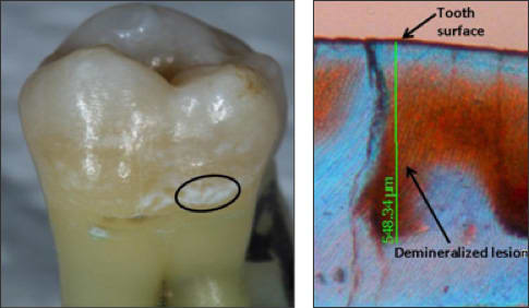 Photos showing demineralization lesions