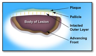 Diagram of an early tooth lesion