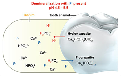 Diagram showing demineralization reactivity