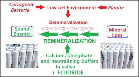 Diagram showing remineralization process with the addition of Fluoride