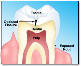 Diagram showing the surfaces at risk for root caries