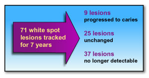 Diagram showing the tracking of 71 white spot lesions for 7 years
