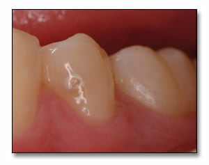 Photo showing an example of mandibular second premolar with a buccal surface cavitation that cannot be remineralized