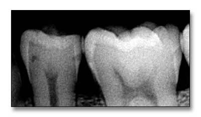 Xray showing an example of mandibular second premolar with a buccal surface cavitation that cannot be remineralized