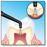 Illustration of DIAGNOdent being used on a tooth