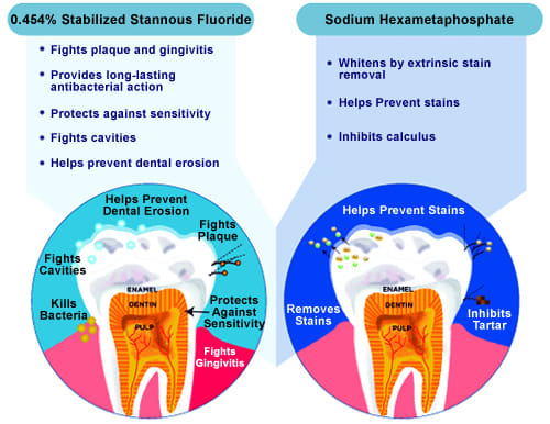 Image comparing two types of fluoride
