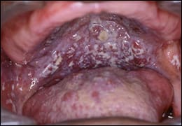 Photo example of Psuedomembraneous Candidiasis