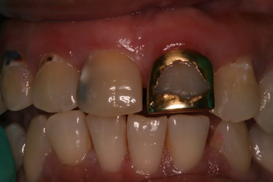 Class III and Class V caries
