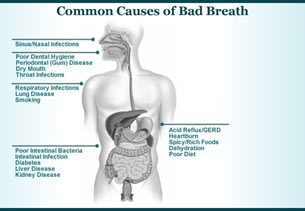 common cause of bad breath