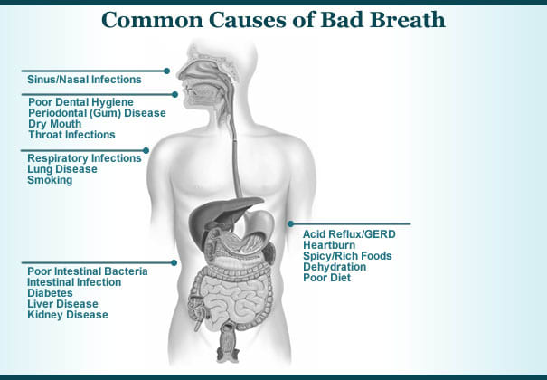 common-cause-of-bad-breath