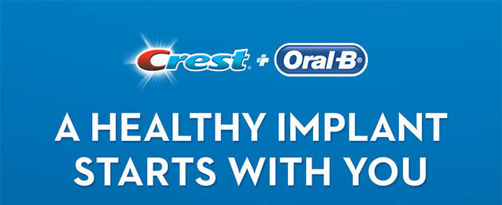 Crest + Oral-B Implant System