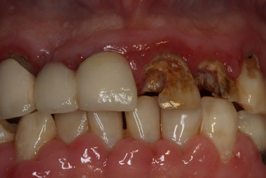 Dental caries and inflammation