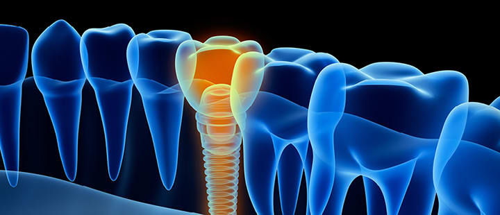 dental-implants-care