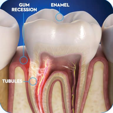 dental-sensitivity-1