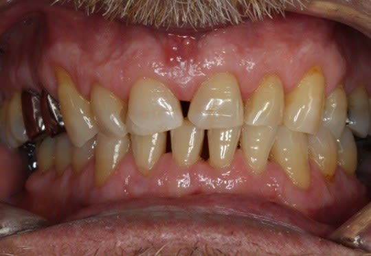 Fibrotic gingiva and blunting