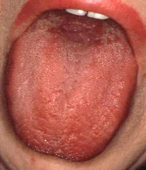 Photo showing antihistamine-induced xerostomia.