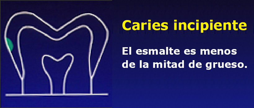 Incipient Interproximal Caries
