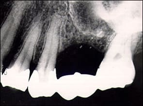 radiograph of the missing root tip