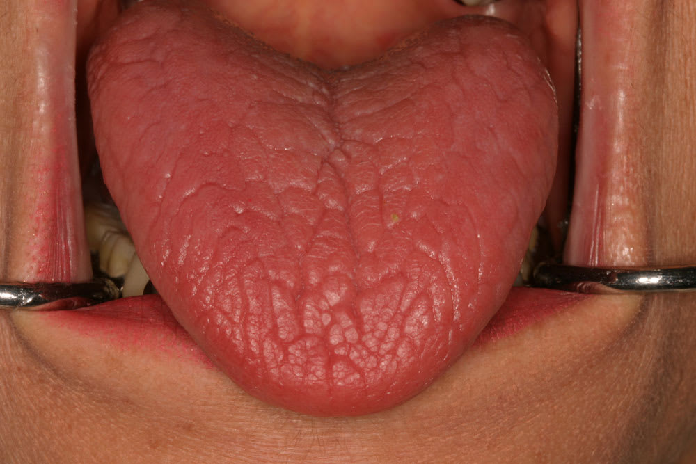 Image of dry tongue on 75-year-old female.