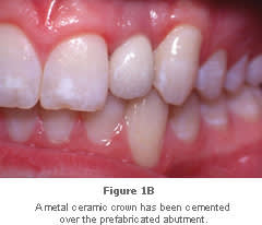 Image: metal-ceramic crown in place