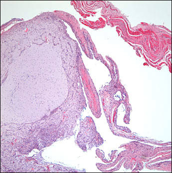 cyst-like structure