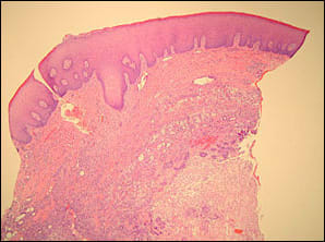 image showing photomicrograph of tissue