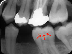 Pit and Fissure Caries