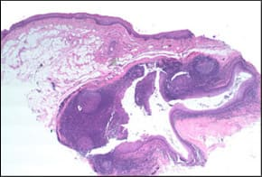 specimen covered by surface epithelium