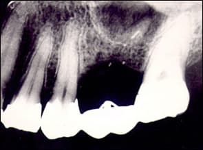 radiograph taken with vertical angulation of radiation beam