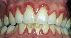 Image: Frontal view of teeth.