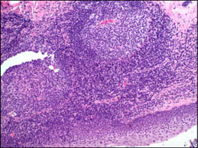 cystic lining surrounded by lymphoid aggregates