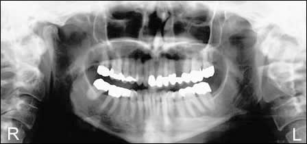 image of the patient's panoramic radiograph
