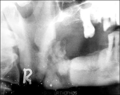 radiograph of lesion