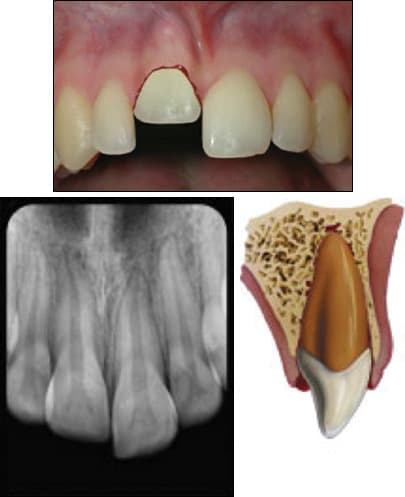 fig03-tooth-intrusion