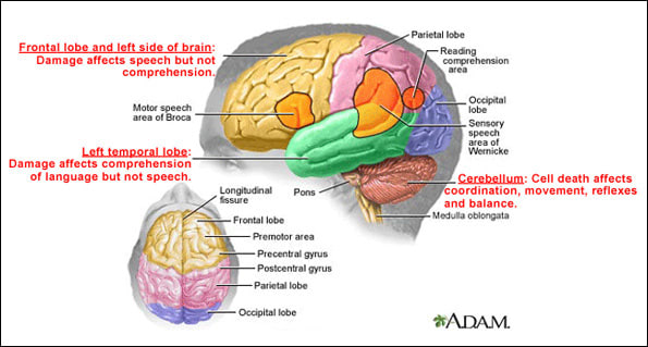 Diagram of the brains showing the location of damage
