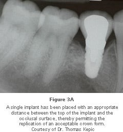 Image: implant with space