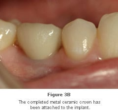 Image: completed crown attached to implant