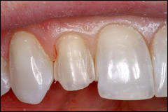 Incisal Lingual Wrap Preparation