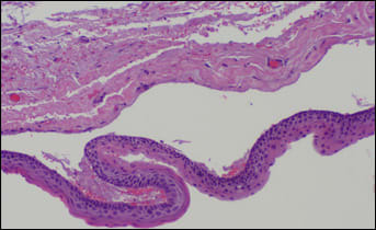 proliferation of squamous epithelium forming complex cystic spaces