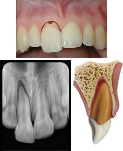 fig04-tooth-extrusion